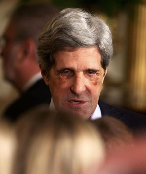 John Kerry's black eyes after having cosmetic surgery, which he denies.