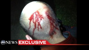 New Photo Shows Zimmerman Bleeding Profusely From Head Wound