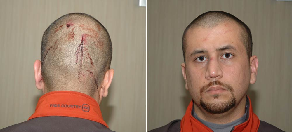 - George-Zimmerman-Head-Trauma