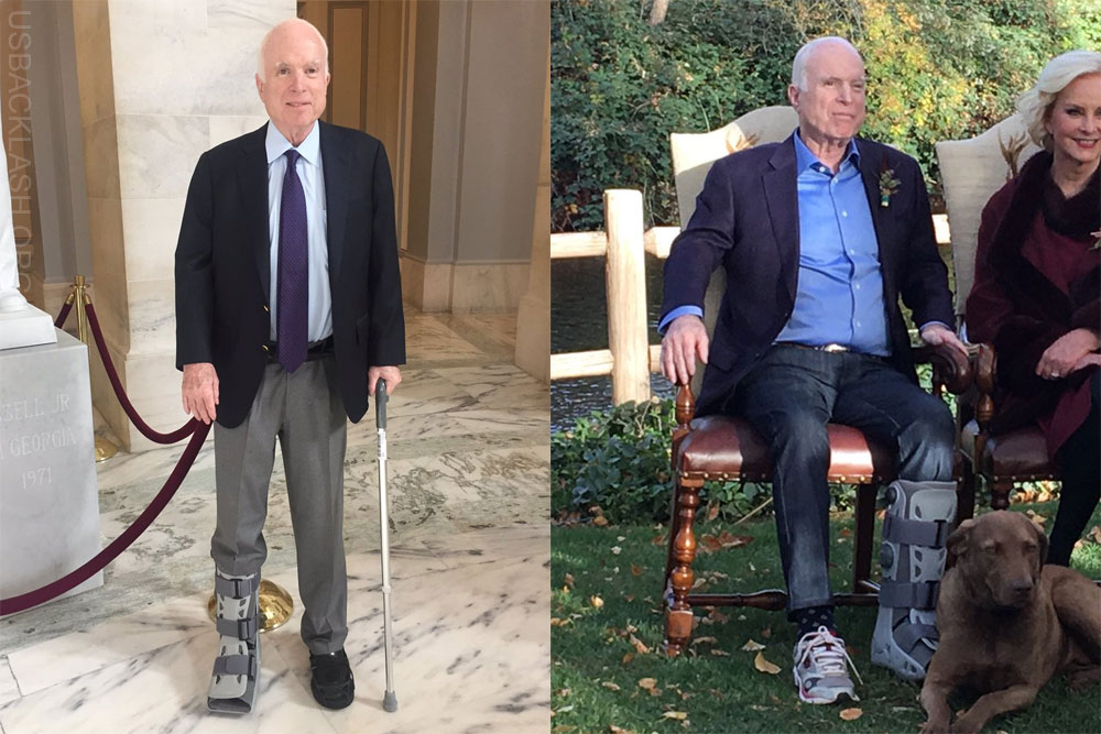 Closet Democrat Liar John McCain Busted In Absurd Lie About Injured Foot