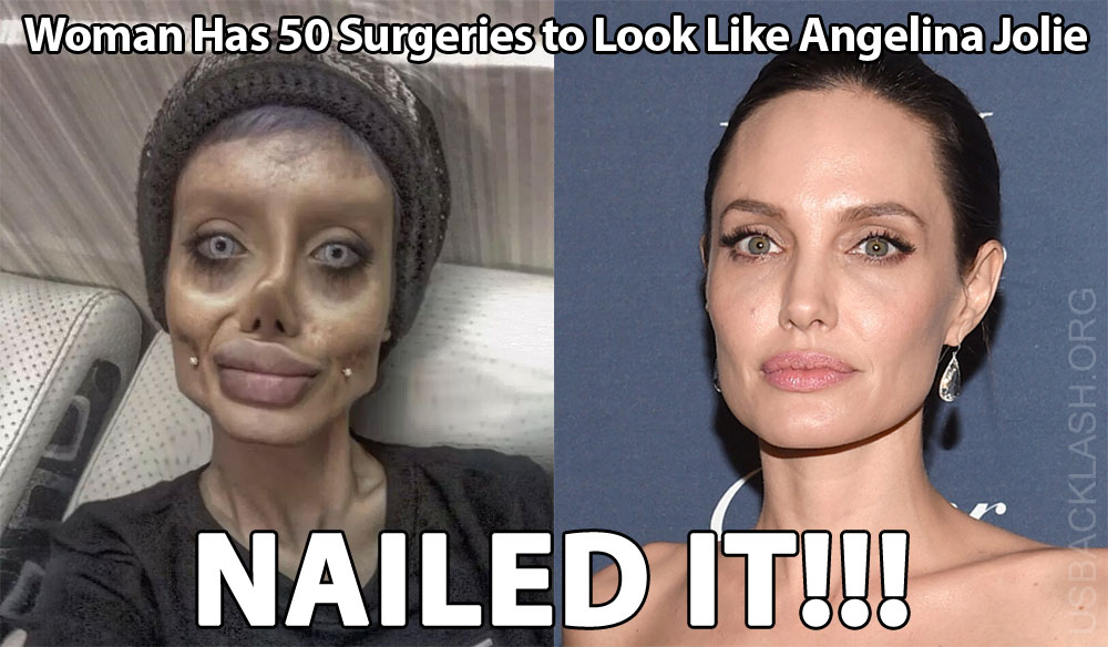 "Woman Has 50 Surgeries to Look Like ""Walking Dead"" Angelina Jolie & Nails It!"